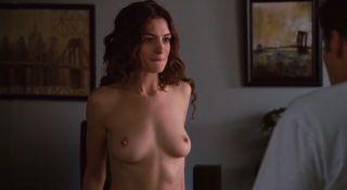 Second breast augmentation